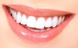 Biodentarium:Biodentarium Estetica Dentara, Albire Dinti cu Laser, Albirea dintilor cu ajutorul laserului BIOLASE EPIC X